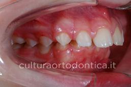 ADOLESCENT-mandibola-corta-Classe-II-1