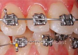 brackets-acciaio