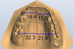 misurazioni-dentali-modelli-digitali
